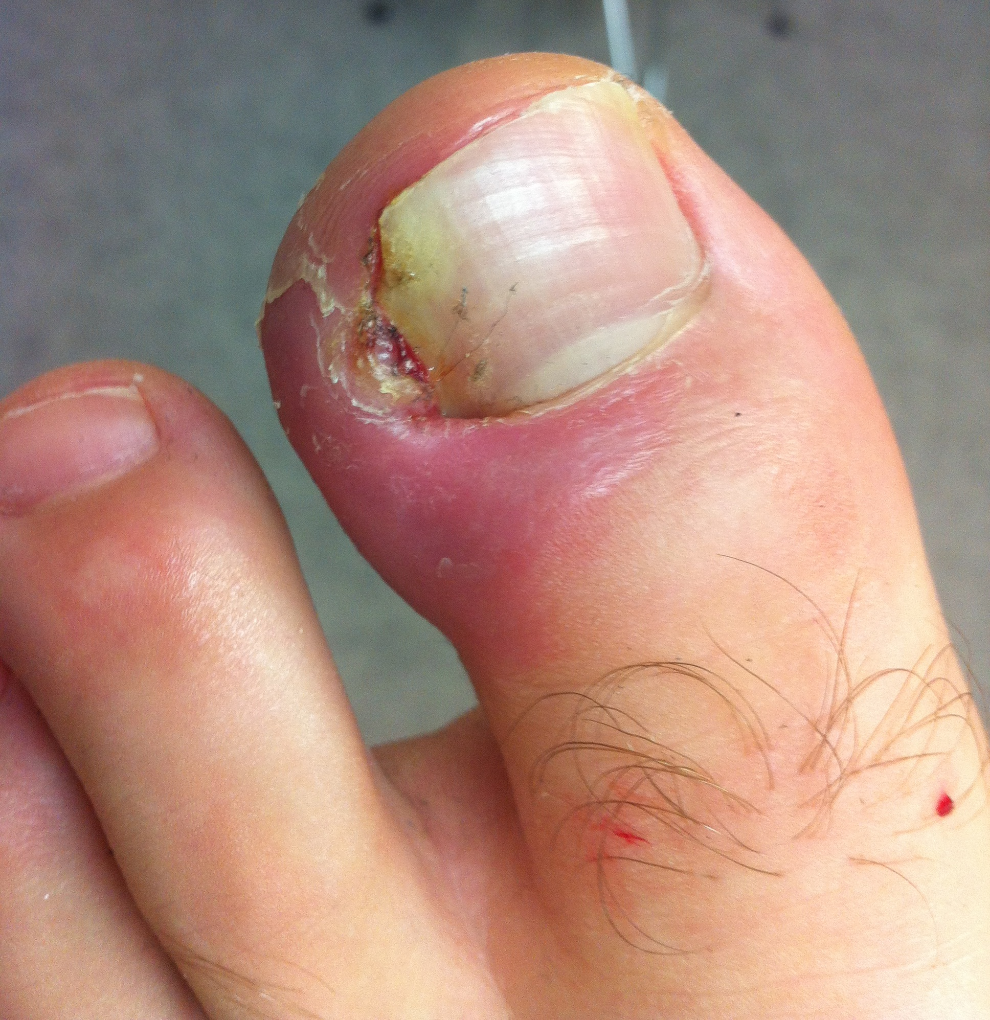Ingrown Toenail Causes, Home Remedies, and Treatment
